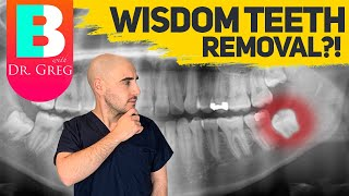 Wisdom Teeth Removal And Braces