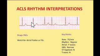 ACLS EKG Rhythms 2016 - Interpretations and managements by NIK NIKAM MD