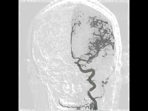 Minimális jeleit pulmonális hypertensio