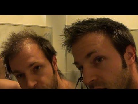 Hair Mask na may mustasa dati
