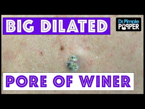 Dr Pimple Popper: Huge Dilated Pores of Winer ...