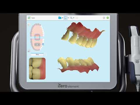 iTero® Scanner Tutorial: Pre-Treatment Scan