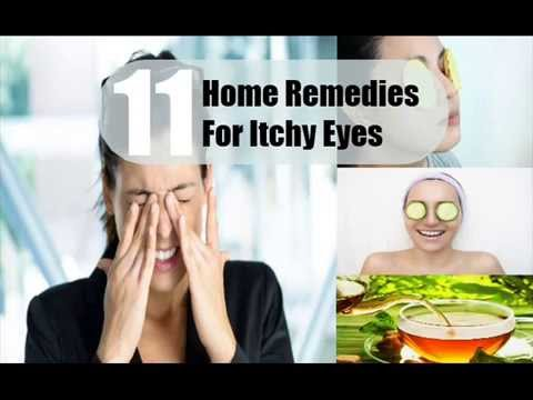 Video 11 Home Remedies For Itchy Eyes