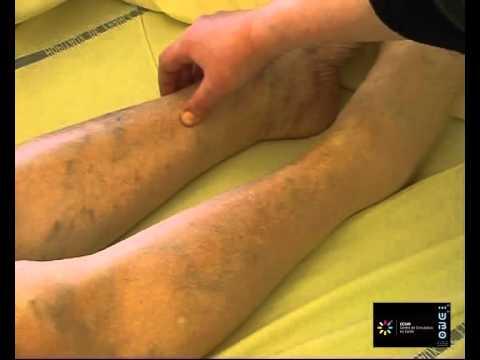 La phlébite le traitement à tcheboksarakh