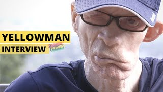 Yellowman Interview Pt.1 'From Scorned Orphan to King of Dancehall'