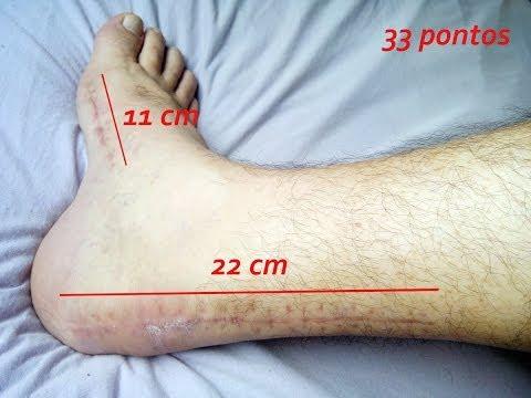 Unguento contra fungos em uma perna