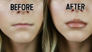 HOW TO FAKE LIP FILLERS || Noel Labb