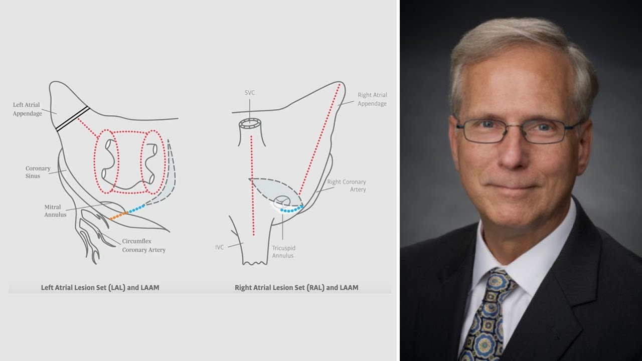Glenn Barnhart, MD – The Cox-Maze IV and Surgical Ablation Evolution