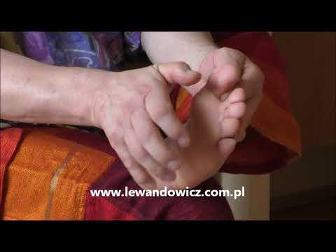 Zapobieganie leczeniu nadciśnienia