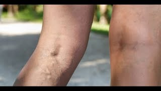 Warning signs of deep vein thrombosis you need to watch out for
