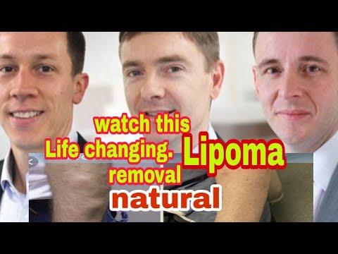 Best Lipoma Treatment in India - смотреть онлайн на Hah Life