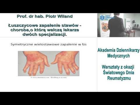 Odkształcanie artroza kolana wg ICD 10