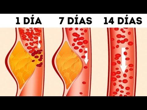 Trombosis e hipertensión