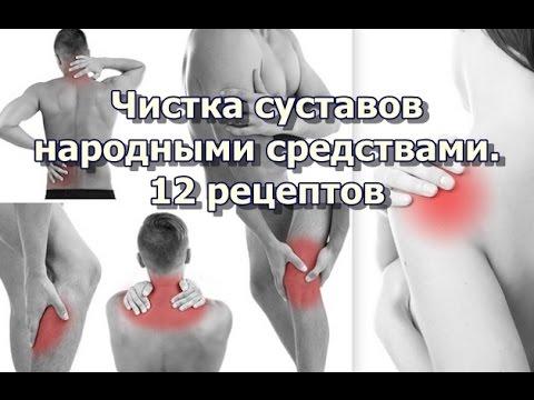 Чистка суставов народными средствами. 12 рецептов