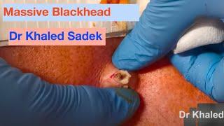Massive Blackhead Removed. Dr Khaled Sadek. Www.lipomacyst.com