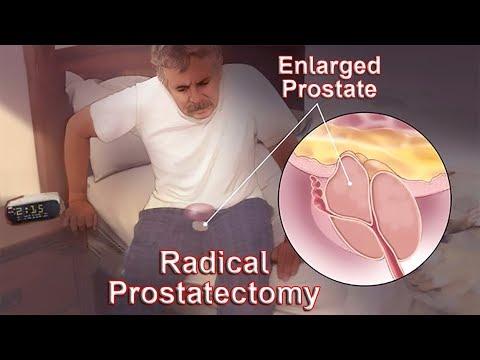 Prostata ragt in die Blase