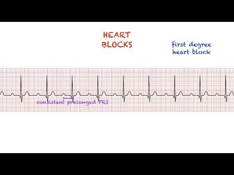 A magas vérnyomás ARZ tünetei