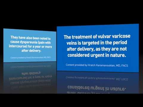 Prevenzione di varicosity di una gamba
