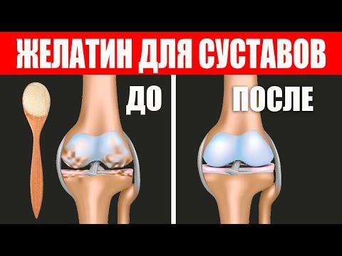 Желе для восстановления суставов. Натуральный коллаген
