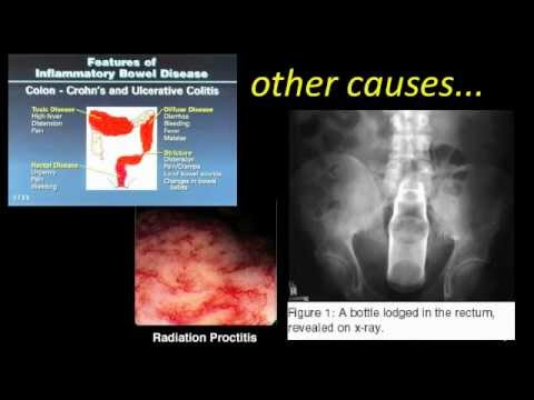 Ból rozszerzające odbytu na początku ciąży
