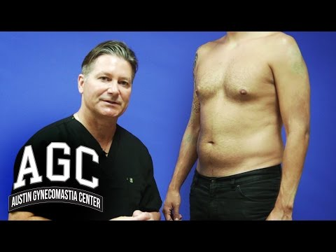 Educational Video: Abdominal Liposuction in Combination with Gynecomastia Treatment