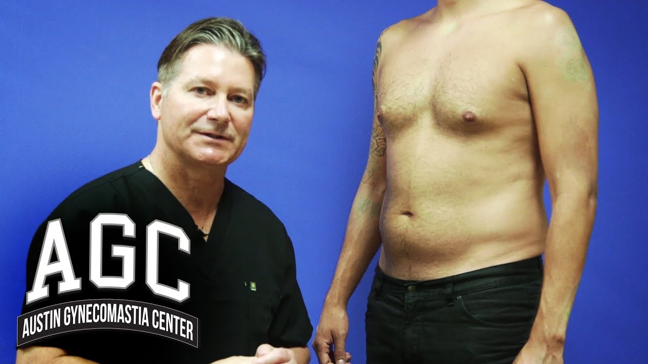 Gynecomastia Video: Abdominal Liposuction in Combination with Gynecomastia Treatment
