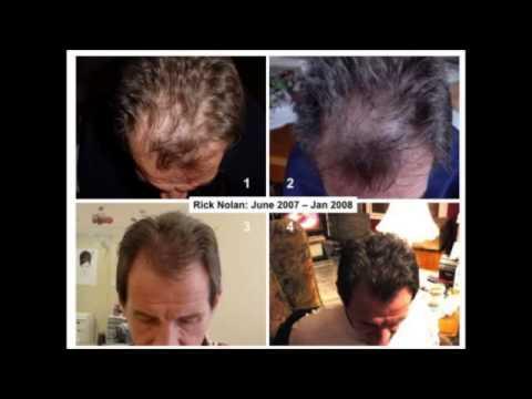 Hair kumpanya lotion laban sa buhok pagkawala review