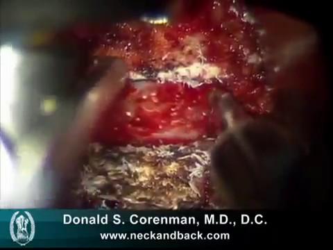 Cosa fare se gli intestini dal lombo fa male