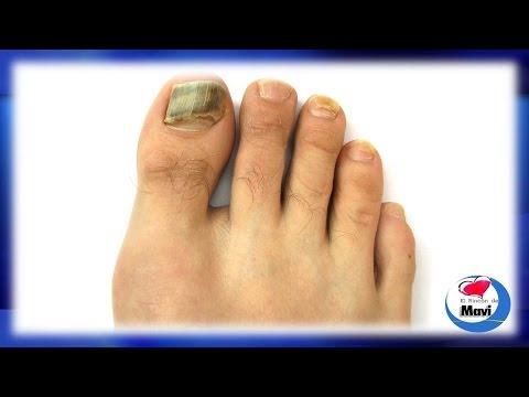 La medicina el tratamiento del hongo de los pie