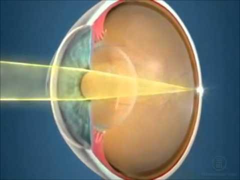 Профилактика зрительного утомления и близорукости