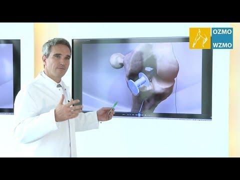 Wie eine Zyste im Kniegelenk behandeln