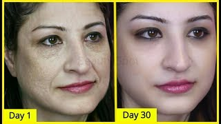 Look 20 Years Younger Than Your Actual Age By Using Carrots, Get Flawless,Glowing & Beautiful Skin