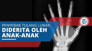 Rakitis, Kelainan Tulang yang Menyebabkan Tulang Rapuh, Mudah Patah dan Mengalami Pembengkokan