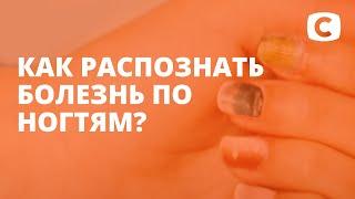 Что люди знают о грибке ногтей? – Эксперимент
