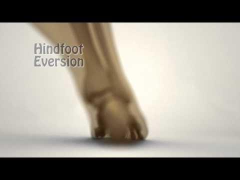 เท้า valgus ผิดปกติ SPB การดำเนินงาน