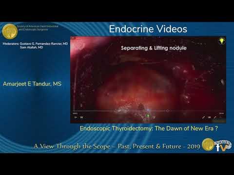 Tyroidektomia endoskopowa: początek nowej ery?