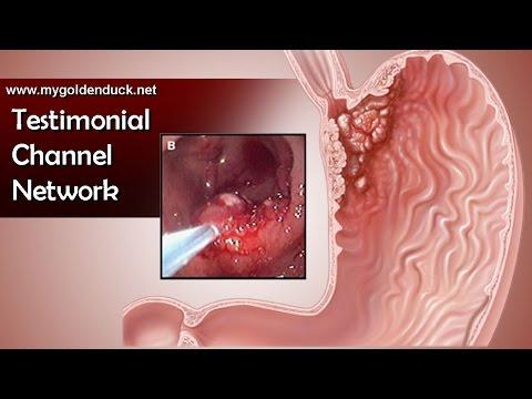 Video Obat Asam Lambung | Cara Mengobati Maag dan Asam Lambung Secara Alami