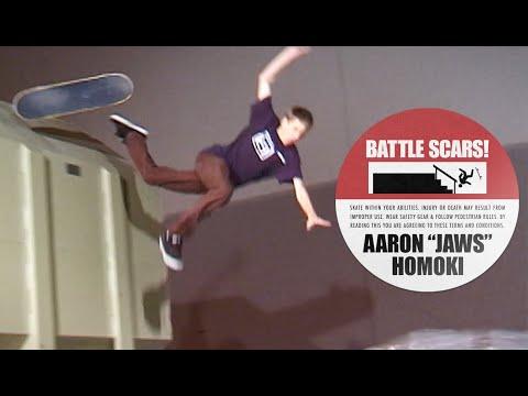 Aaron Jaws Homoki's Battle Scars