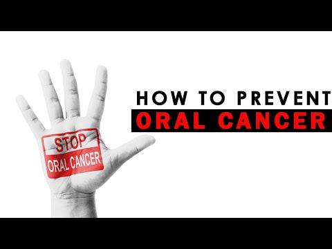 How to Prevent Oral Cancer | Mouth Cancer | Healthfolks.com