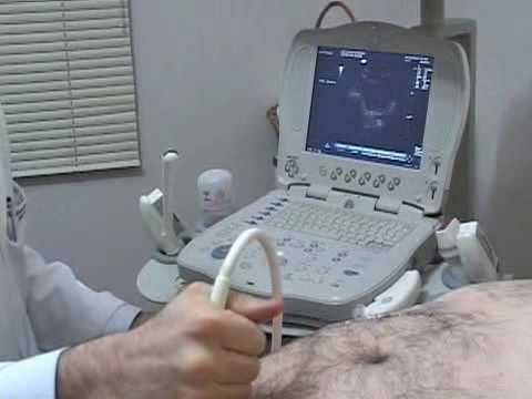 Prostatitis und stsek