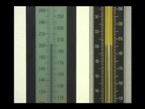 Alta pressione sanguigna sensazione di pressione nella testa