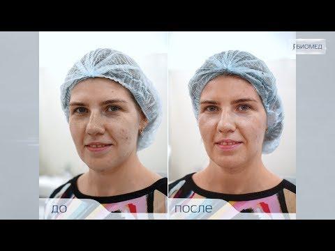 Процедура отбеливания кожи в интимных зонах