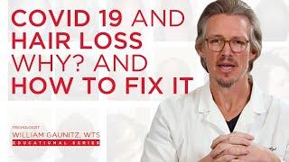 What is Covid 19 Hair Loss? Coronavirus hair loss treatment for Men and Women from Telogen Effluvium