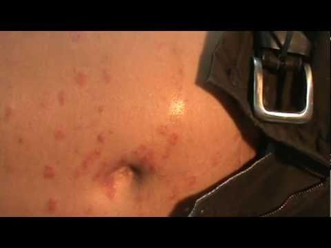 Quien ha ayudado el bacteriófago a atopicheskom la dermatitis