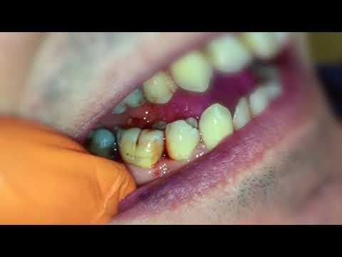 Zahnzwischenraumbürsten - richtig benutzen