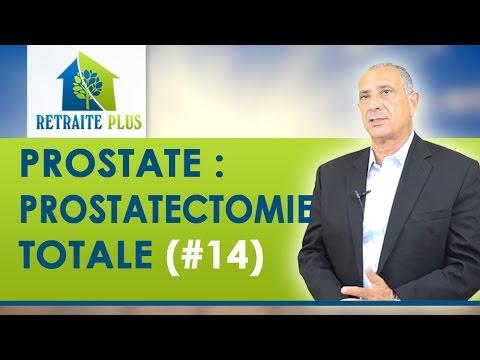 Planifier la grossesse après le traitement de la prostatite