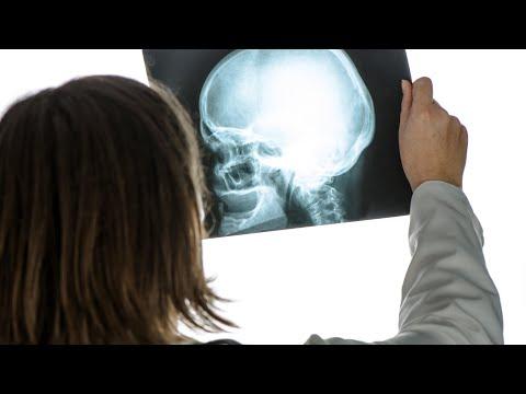 Dureri la nivelul articulațiilor umărului după accidentare
