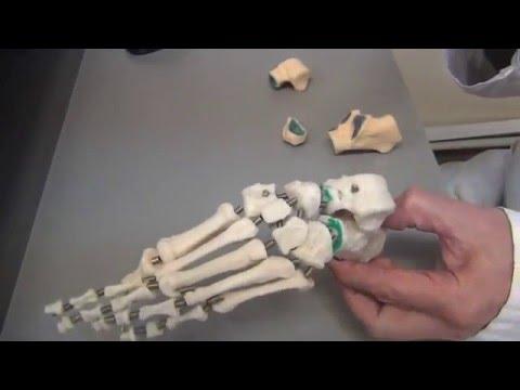 Мазь для суставов при плоскостопии