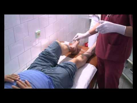 Diabet de tip 2, uscăciunea gurii, cum să scape