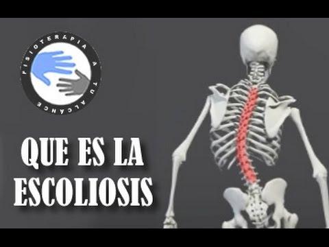 ¿Qué Es y Cómo Se Produce La Escoliosis?